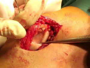 minced cartilage 1